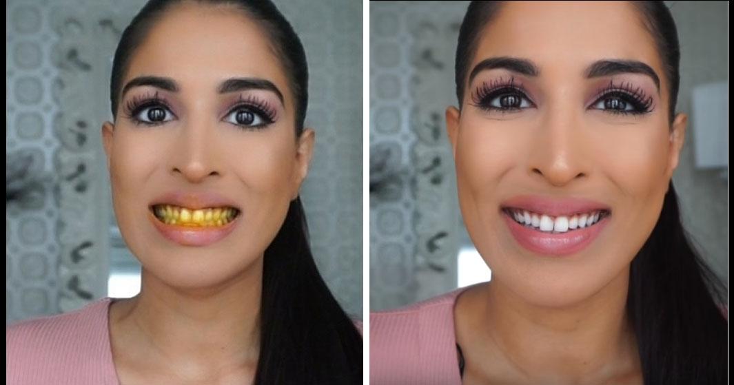 Como Clarear Os Dentes Em Casa Em 3 Minutos